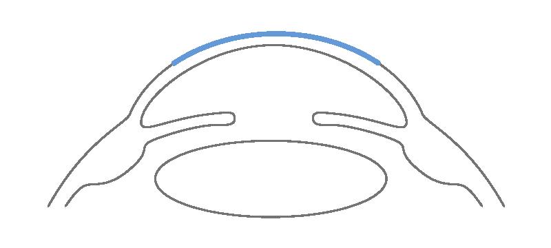 m Augenzentrum Klatt arbeiten wir vielseitig mit verschiedenen Laserverfahren bei Vorsorgen, Früherkennungsuntersuchungen und Operationen.