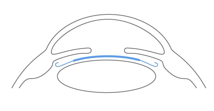 Schema einer Premiumlinse
