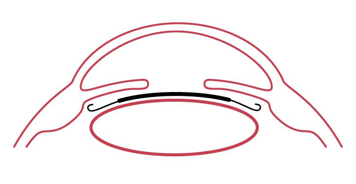 Implantierbare_Kontaktlinsen