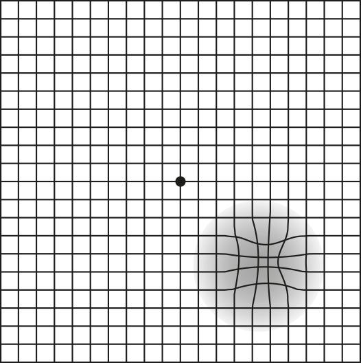 Die Ansicht des Amsler-Gitters bei möglichem Gesichtsdefekt