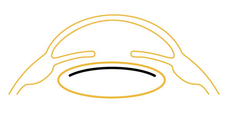 Makulaschutzlinsen